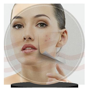 cicatriz-acne-p
